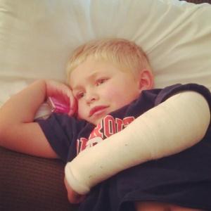 Zeke + Broken Wrist
